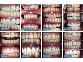 《白い歯キャンペーン開催》 歯のエステが大人気_20200403_1