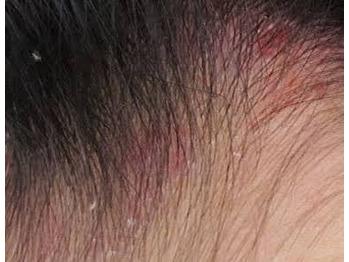 頭皮が赤いのは…  【国分寺】_20171005_2