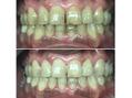 歯のブリーチが大人気!白い歯は笑顔が素敵
