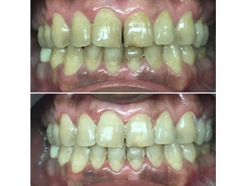 歯のブリーチが大人気!白い歯は笑顔が素敵_20200403_1