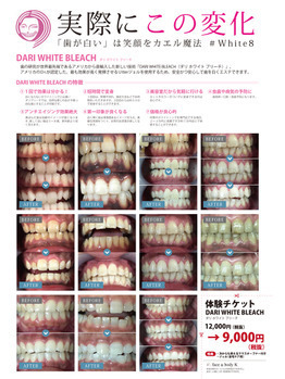 歯のブリーチが大人気!白い歯は笑顔が素敵_20200403_2