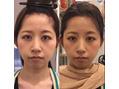 整頭術で小顔にリフトアップ!高田馬場美容室!