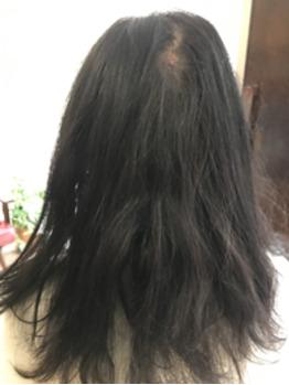 新メニュー【髪質改善ストレートトリートメント】_20191002_1