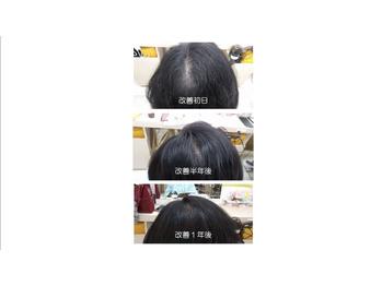 育毛☆_20181126_1