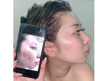 肌に優しい全身化粧水♪_20201005_1