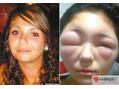 改めて考えるジアミンアレルギーの怖さ。