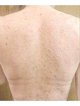 背中のニキビ/ニキビ痕/毛穴の黒ずみにはココティー_20190921_4