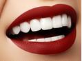 歯が白く見える方法