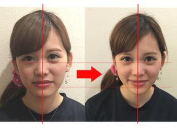 顔の歪み_20181224_1