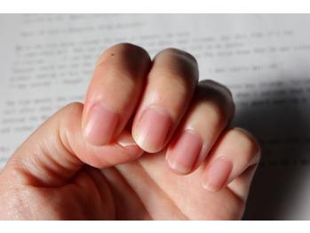 【超重要】すぐできる!冬の爪の乾燥チェック_20200113_1