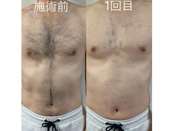 メンズ脱毛モニター様_20201115_1