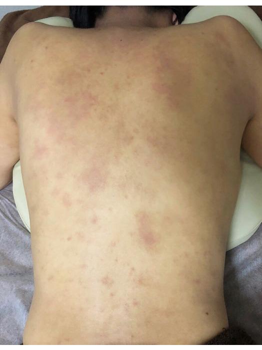 背中のアトピー性皮膚炎にはグリーンピールが有効!_20181129_1