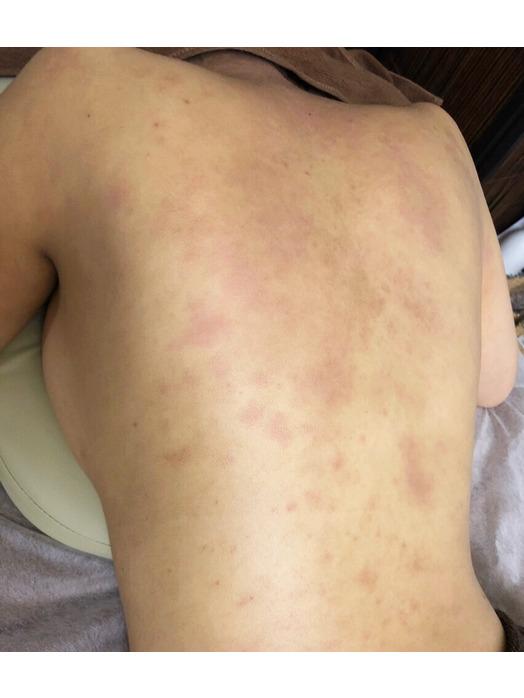背中のアトピー性皮膚炎にはグリーンピールが有効!_20181129_2