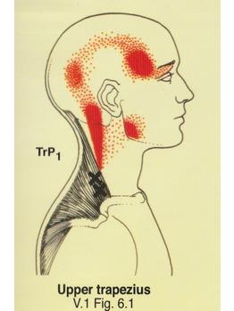 慢性頭痛・偏頭痛・筋緊張性頭痛_20210907_3