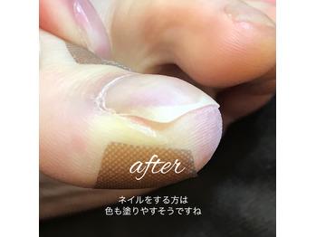 自宅でできる巻き爪と陥入爪対策!テーピング法【2】_20200429_4