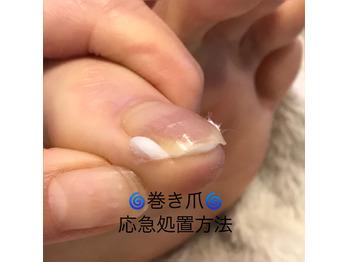 自分でできる巻き爪と陥入爪痛み対策!コットン法【2】_20200427_4