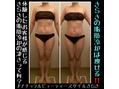 さらさの脂肪冷却は何でこんなに痩せるの?