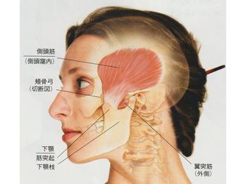 20代女性毎日の頭痛・吐き気を整体で開放へ_20210907_3