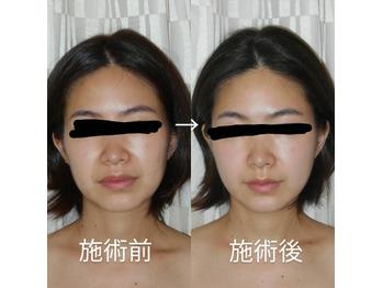 小顔効果だけじゃない♪顔と頭皮の筋膜リリースケア_20210525_1