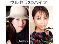 切らないリフトアップ!!尾道初ウルセラ3Dハイフ☆