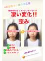 ベーシック小顔の変化!!!