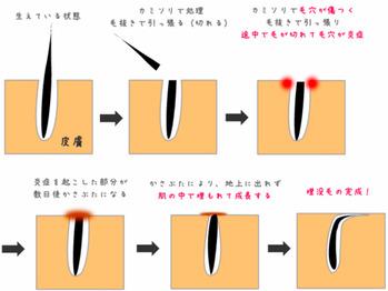 埋没毛(うもれ毛)の原因と対策_20180223_2