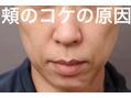 小顔マッサージで「頬コケ」がひどくなる理由