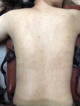 背中のニキビ/ニキビ痕/毛孔性苔癬グリーンピール_20200717_2