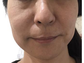 【ヒト幹細胞培養液】施術による現在進行中の効果公開_20180906_1