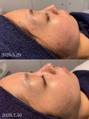 ニキビ治療症例写真(期間1ヶ月半3回施術))