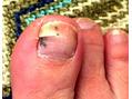 巻き爪、割れ・欠け・二枚爪・肥厚爪!爪トラブル119番