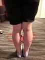むくみやすい足とは?