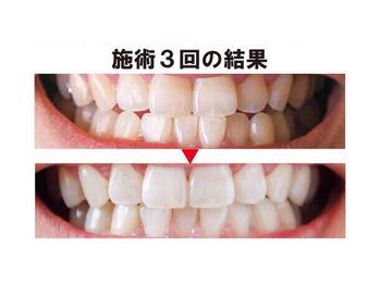 歯の白さは印象を変えます☆_20180611_1