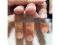 爪にコンプレックスありますか?