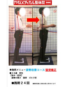 ◆ビフォーアフター◆画像あり 施術経過●猫背矯正●_20180809_1