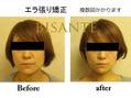 夏が来る前に、顔の歪みと体の歪みは改善しましょう