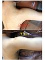二の腕毛孔性苔癬/毛孔性角化症グリーンピールボディ