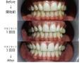 歯のセルフホワイトニング口臭予防♪