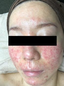 顔面真っ赤に化膿したニキビ/ニキビ痕グリーンピール_20191225_2