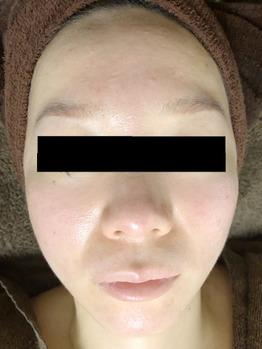 顔面真っ赤に化膿したニキビ/ニキビ痕グリーンピール_20191225_3