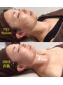 リベルハーブピーリングで肌再生☆皮膚再生