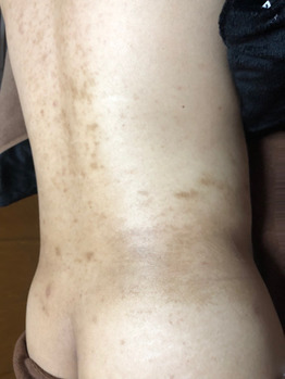 腰の黒ずみ/色素沈着/背中毛孔性苔癬にグリーンピール_20200624_2