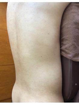 腰の黒ずみ/色素沈着/背中毛孔性苔癬にグリーンピール_20200624_3