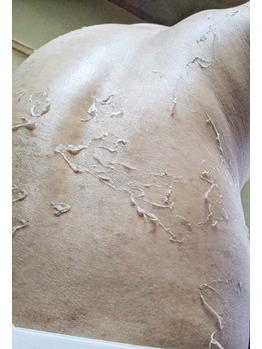 腰の黒ずみ/色素沈着/背中毛孔性苔癬にグリーンピール_20200624_4