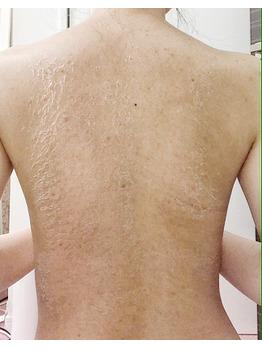 背中のニキビ/ニキビ痕/毛孔性苔癬グリーンピール_20200717_4