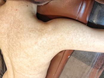 二の腕や背中の毛孔性苔癬/毛孔性角化症にココティー_20191223_1