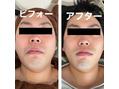 小顔筋膜リリース
