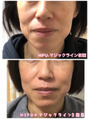 冬の日焼け.乾燥による肌トラブルと老化