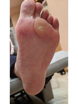 【foot】ガサガサかかと、タコ、ウオノメでお悩みの方_20201007_3