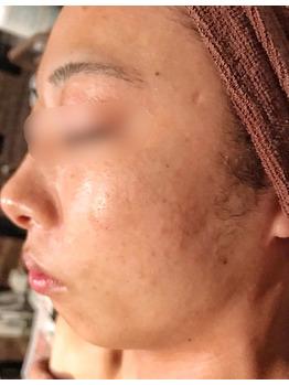 顔のクレーター、シミ、ニキビ痕にグリーンピール_20181215_1